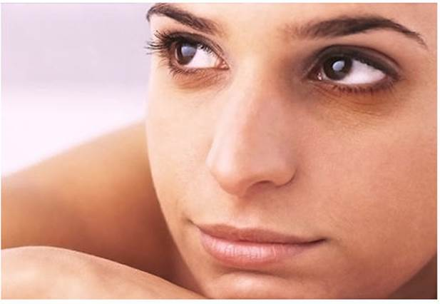 Dark circles under the eyes can be due to genetics
