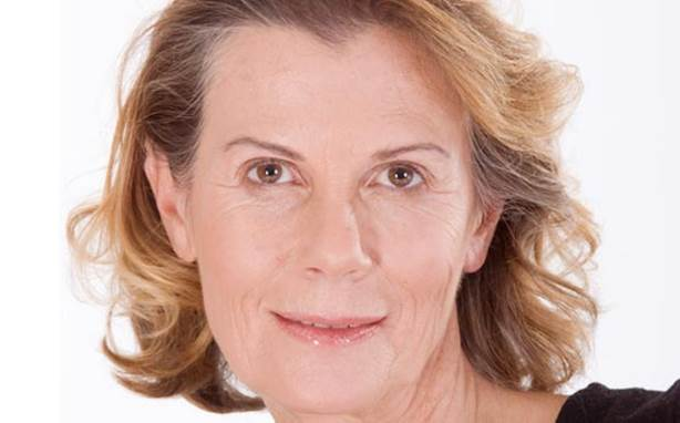 Wrinkling is mostly due to lifestyle rather than genetics