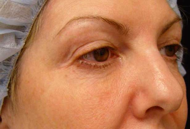 Hollowness on the inside of the lower eye, near the nose, is an early sign of ageing. The eye trough is caused by natural fat loss.