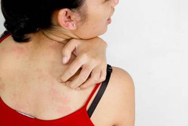 Instead of itching, rub the bite with an ice cube to bring down inflammation and numb the sting