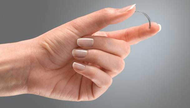 Description: Essure is a proven permanent birth control procedure that works with your body to create a natural barrier against pregnancy