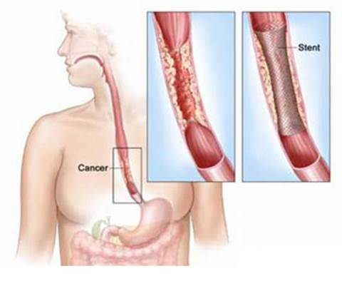 Esophageal cancer may cause painful swallow