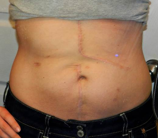 Belly Button Ring Scar Surgery