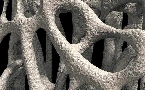 Description: Osteoporosis is a bone disease which includes a decrease in bone mass and the fragility of bone.