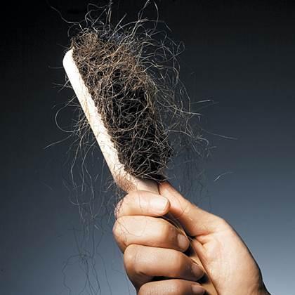 Description: Losing Your Hair