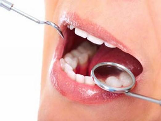 Between three months for those with active disease and two years for those with a very healthy mouth.