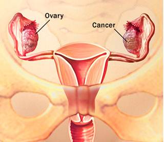 Description: There are more than 30 different types of ovarian cancer