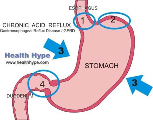 Description: acid reflux