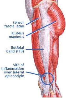 Description: Iliotibial band syndrome