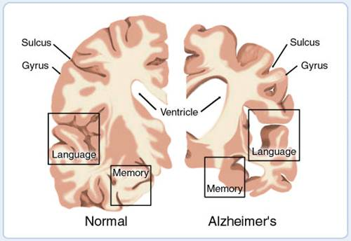 Description: Alzheimer's disease