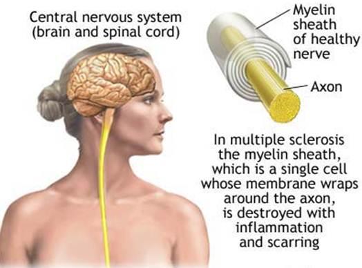 Description:  Multiple Sclerosis (MS)
