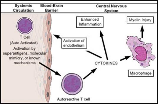 Description: MS: An autoimmune disease