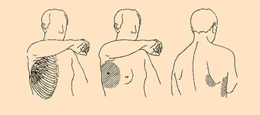 Description: I have a painful lump in my armpit. I've been working out a lot lately, could I have strained a muscle or is it something more serious?