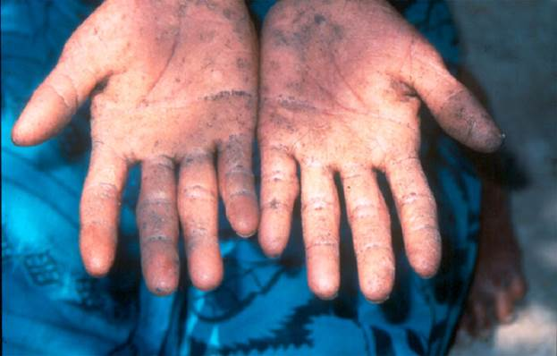 Arsenic can cause cancer in humans