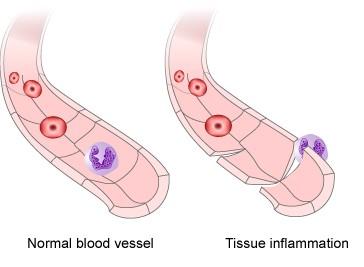 Description: Inflammation
