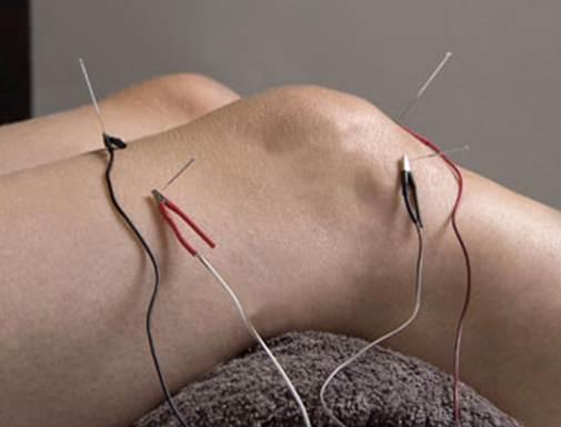 Description: Acupuncture