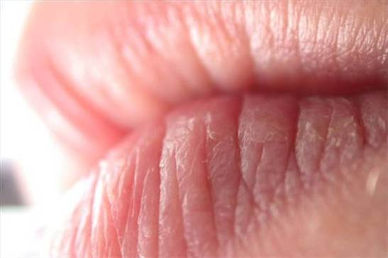 Dry and chapped lips will make you uncomfortable.