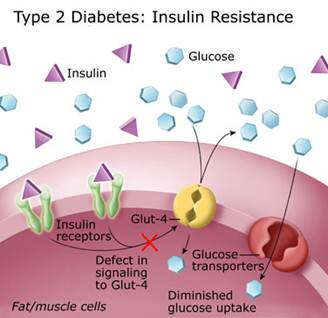 Young Slim And Diabetic Part 1 Health Threats