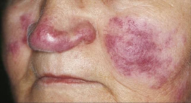 Description: Lupus' early symptoms