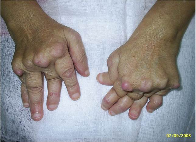 Description: Rheumatoid arthritis