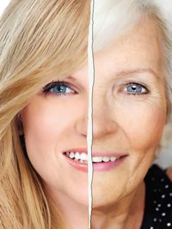 Description: At older ages, skin cells divide slowly, the dermis start to get thinner