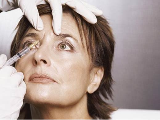 Description: Botox injection – a popular method to implement collagen