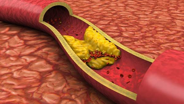 Description: Atherosclerosis occurs when matters called plaques start accumulate at the artery wall.