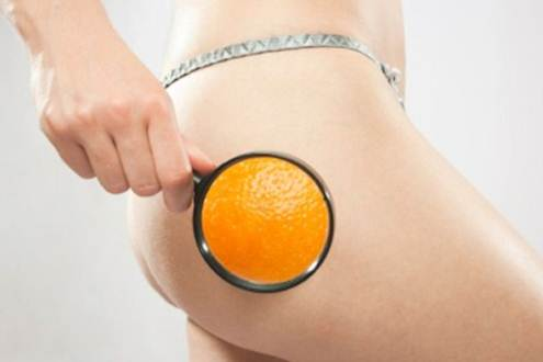 Description: Any unevenness is a sign of cellulite. Women of all sizes can suffer from 'orange peel' skin - fat deposits under the skin that give a dimpled, lumpy effect.