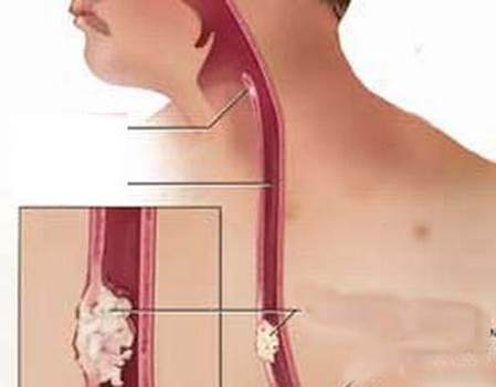 Esophageal cancer is one of the most common cancers in females.