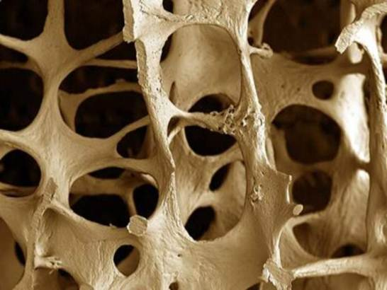 Description: Many people are struggling with osteoporosis every day.