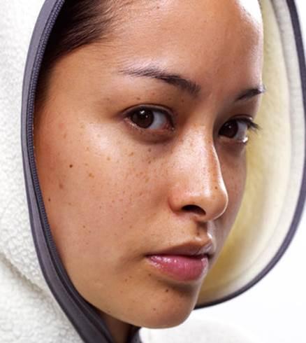 Description: Melasmas, acnes and wrinkles appear