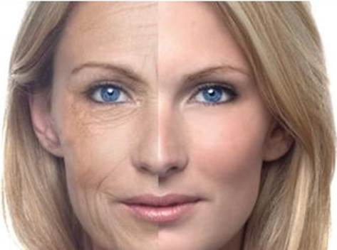 Description: Botox is injected directly into the skin