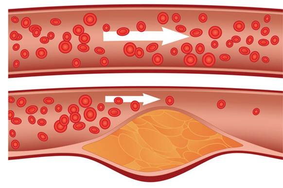 Description: The hypercholesterolemia is a disease caused by a high level of cholesterol in blood